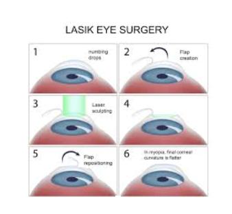 laser refractive1