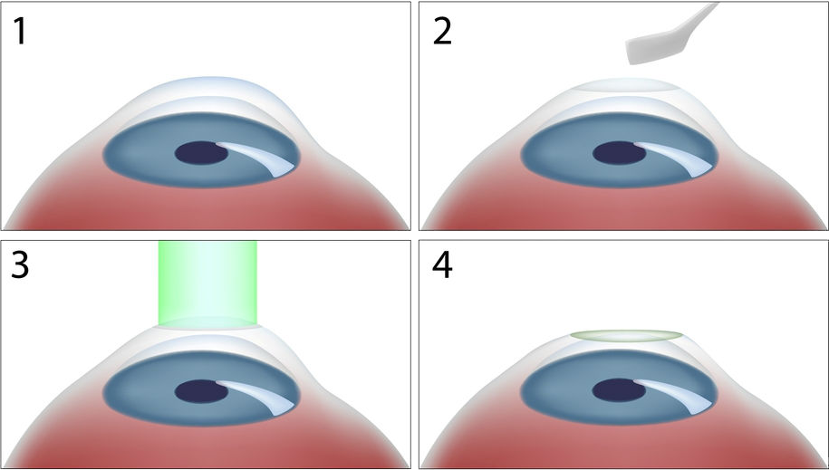 laser refractive2